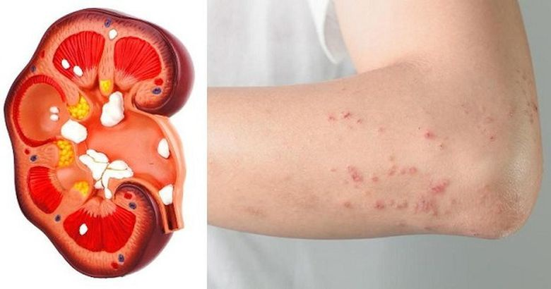 The Body Will Give You These 10 Signs If Your Kidney Is In Danger